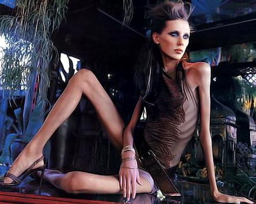 Isabelle Caro 26 No Anorexia: Isabelle Caro