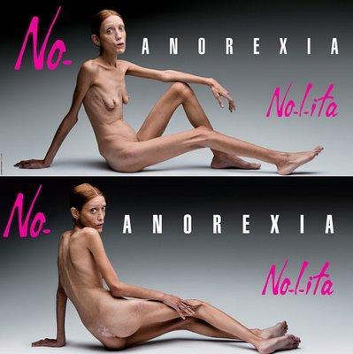 SLIKA 21 No Anorexia: Isabelle Caro