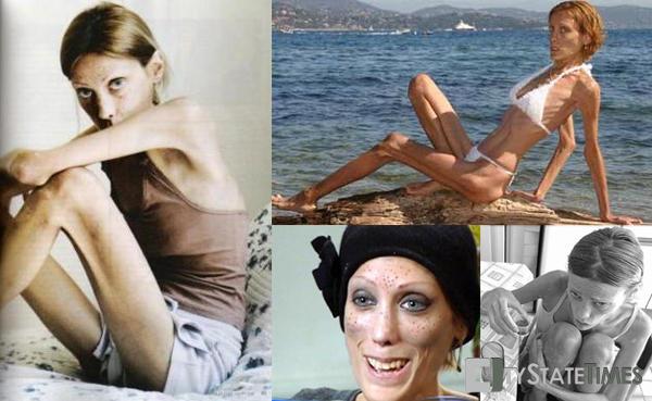 SLIKA 41 No Anorexia: Isabelle Caro