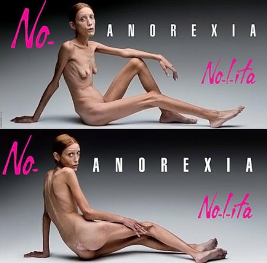 118 10 najšokantnijih kampanja protiv anoreksije