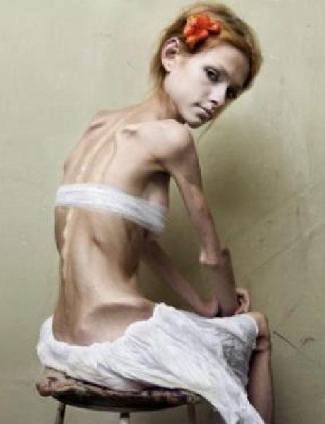 10 najšokantnijih kampanja protiv anoreksije