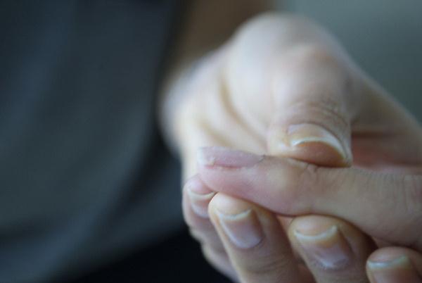 """pripremite nokat Kako """"popraviti"""" polomljen nokat?"""