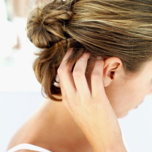 caspa edit Šest jednostavnih trikova za obnavljanje oštećene kose