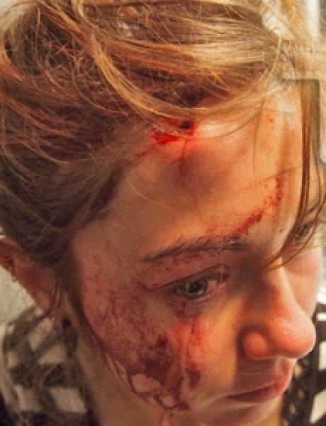 Trach Up: Nove žrtve