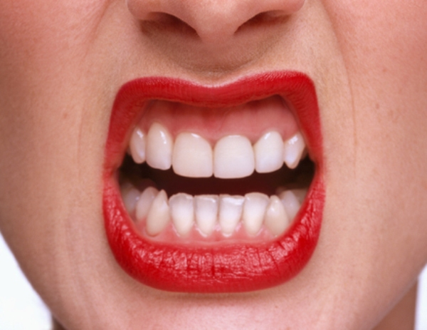 0719 beauty fixes 01 how to get red lipstick off teeth li Šest najjednostavnijih beauty rešenja