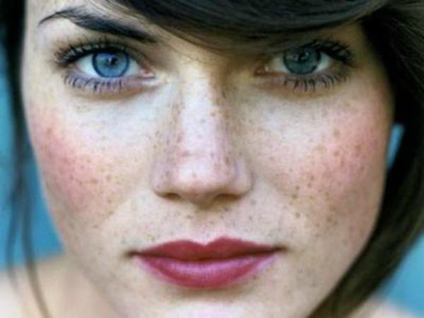 slika z Četiri načina kako da sakrijete pegice na licu