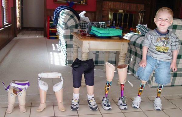 Slika 168 Život bez granica: Cody McCasland