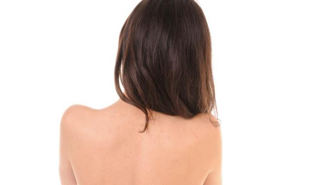 Kako lečiti akne na leđima1 Kako lečiti akne na leđima