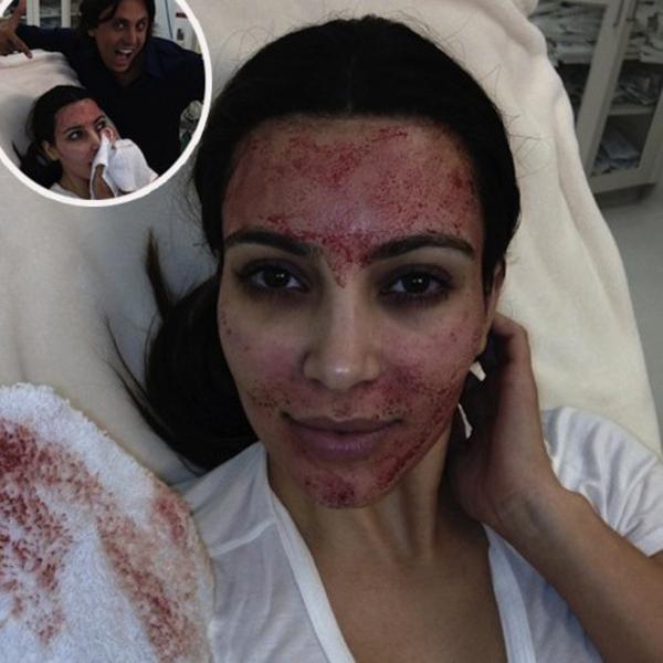 1 kim kardashian Estetska hirurgija: Šta je zajedničko Rafi Nadalu i Kim Kardašijan?