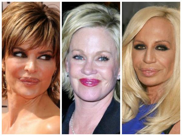 3 Povećanje usana: Nemoj da budeš kva, kva