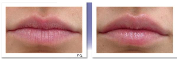 6 Povećanje usana: Nemoj da budeš kva, kva