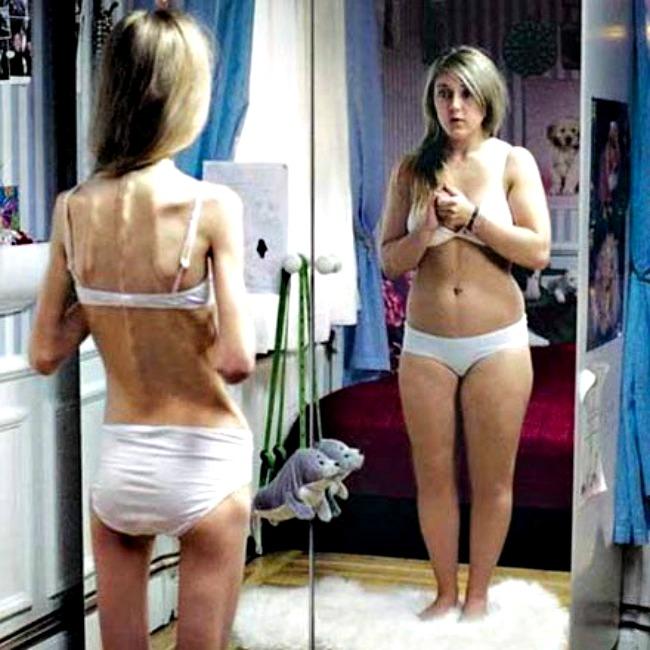 08e210f1ee3c69fb40ee74b2901660a1 Iskreno ženski: Imam 40 kilograma i mnogo sam zgodna