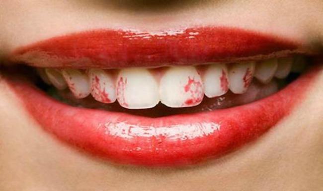 193 Kada šminka ne sarađuje: Karmin na zubima i ostale neprijatnosti