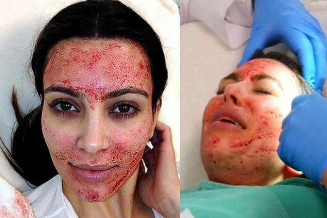21 Najčudniji kozmetički tretmani: Kad si srećan, lupi sebi šamar, kad nisi, lupi još jedan