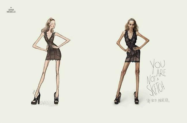 anoreksija1 Biću rumena buca i baš me briga jer se sebi sviđam