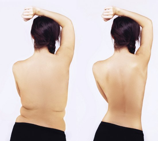 embedded skinny vs curvy Plus size modeli: Da li su i oni pod pritiskom mršavljenja?