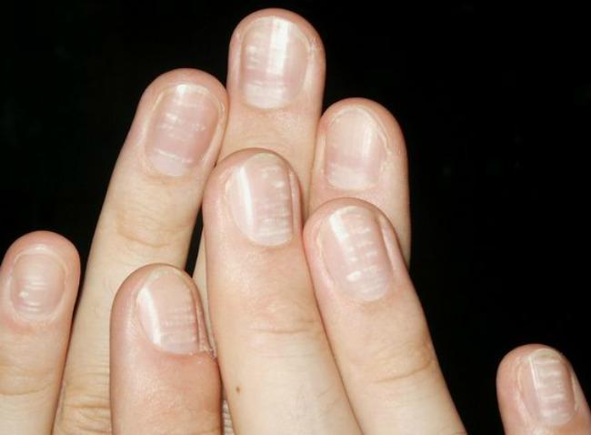 lepota i zdravlje kako nokti govore o vasem zdravlju bele linije Lepota i zdravlje: Šta vaši nokti govore o vašem zdravlju?
