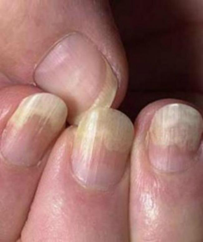 lepota i zdravlje kako nokti govore o vasem zdravlju lomljivi nokti Lepota i zdravlje: Šta vaši nokti govore o vašem zdravlju?