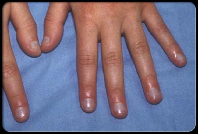 lepota i zdravlje kako nokti govore o vasem zdravlju plavi nokti Lepota i zdravlje: Šta vaši nokti govore o vašem zdravlju?