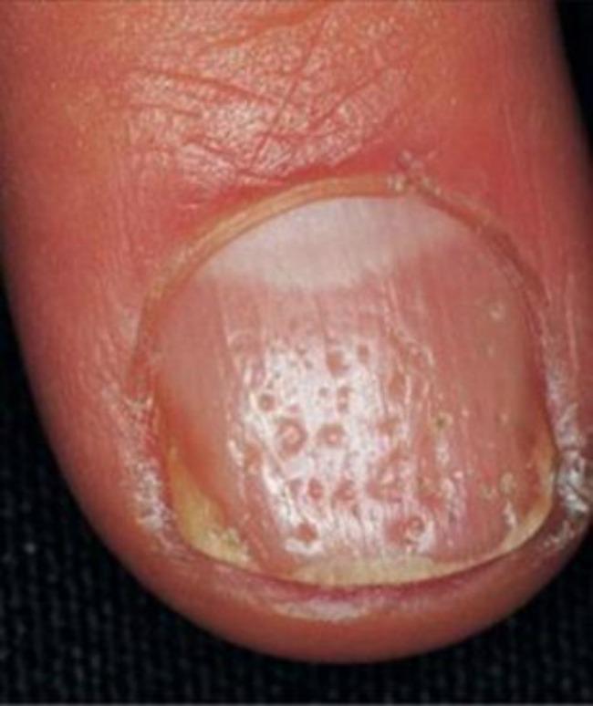 lepota i zdravlje kako nokti govore o vasem zdravlju rupice Lepota i zdravlje: Šta vaši nokti govore o vašem zdravlju?