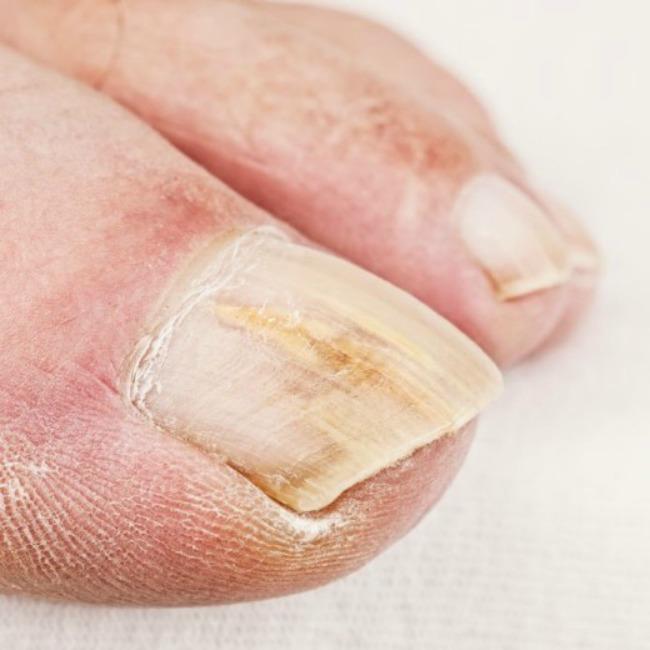 lepota i zdravlje kako nokti govore o vasem zdravlju zuti nokti Lepota i zdravlje: Šta vaši nokti govore o vašem zdravlju?