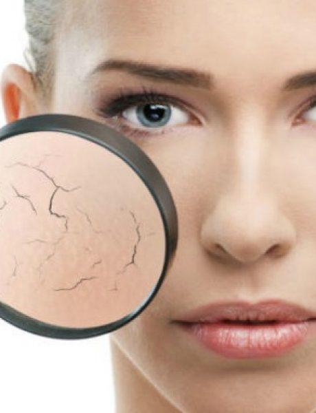 6 proverenih saveta za negu suve kože