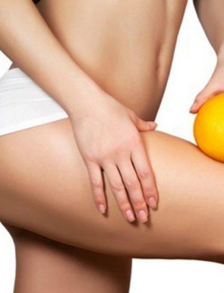10 stvari koje utiču na to da imate sve više celulita