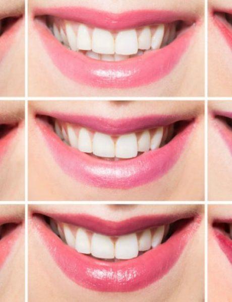 Nijanse karmina sa kojima će vam zubi izgledati belje