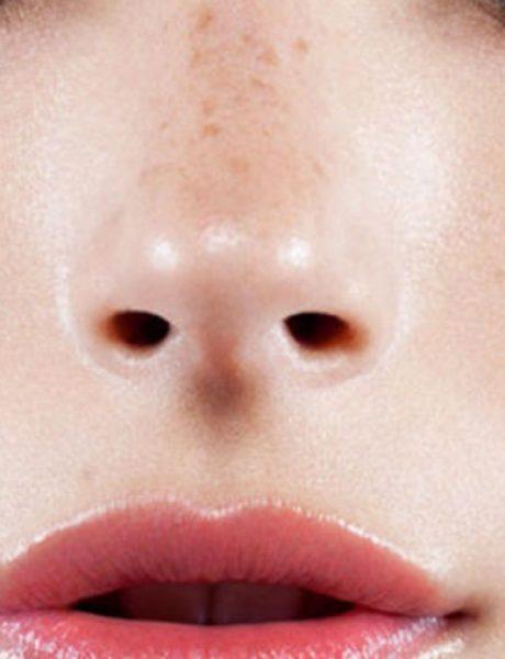 Rešenje za svakodnevne poteškoće osetljive kože