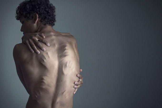 fotografija depresija 7 Depresija predstavljena okom umetnika