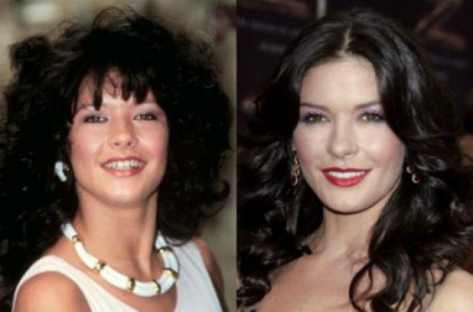 ketrin zita dzons Poznate ličnosti koje imaju lep osmeh zahvaljujući plastičnoj hirurgiji