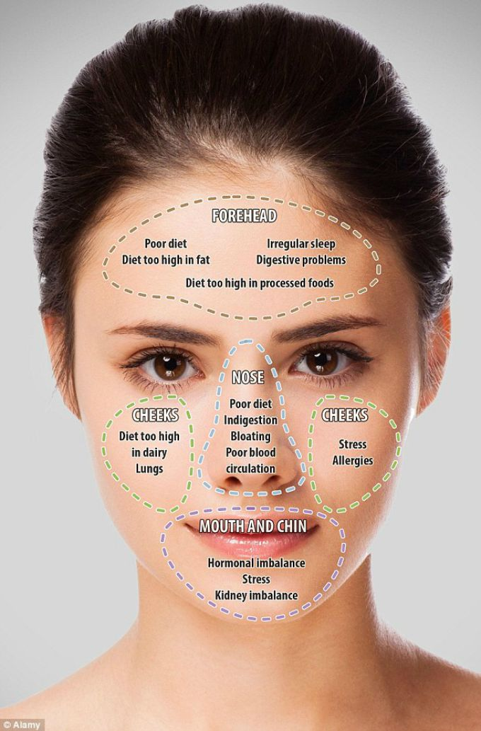 mapa lica Položaj akni ti otkriva zdravstveno stanje