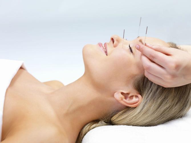 Akupunktaaaa Koja alternativna metoda lečenja je IDEALNA za tebe?