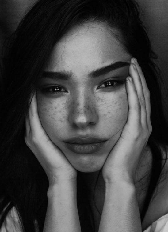 O ovome se ne priča: Bubuljice i nesavršenosti na koži kod odraslih žena + kako ih se rešiti!