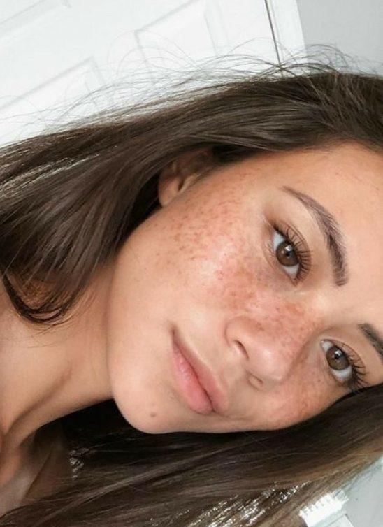 Saveti za negu problematične kože koji stvarno rade